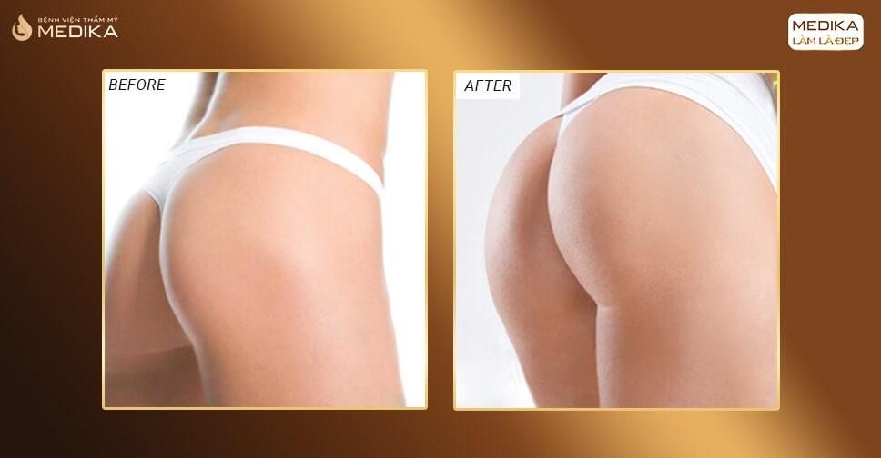 Nâng mông và nâng ngực cùng lúc có nên không?