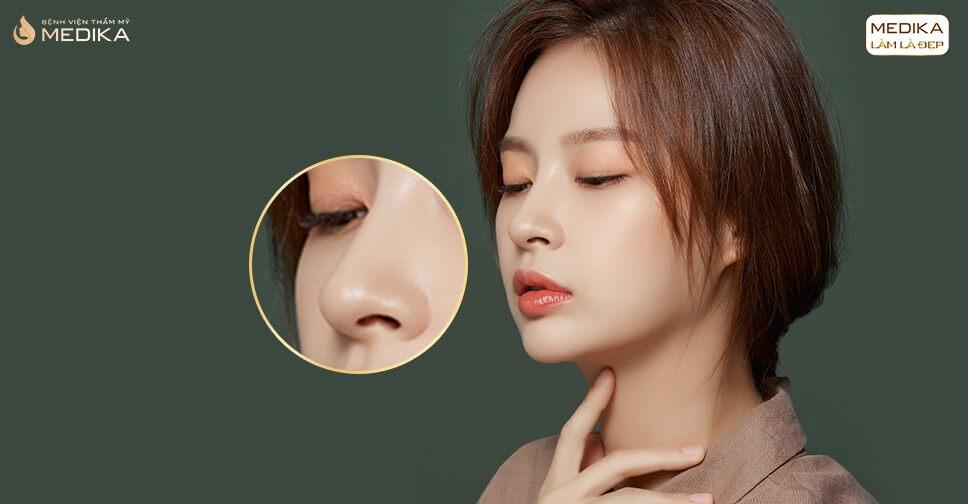 Nâng mũi an toàn hiệu quả bao lâu? Cách duy trì hiệu quả nâng mũi bởi Bệnh viện thẩm mỹ MEDIKA
