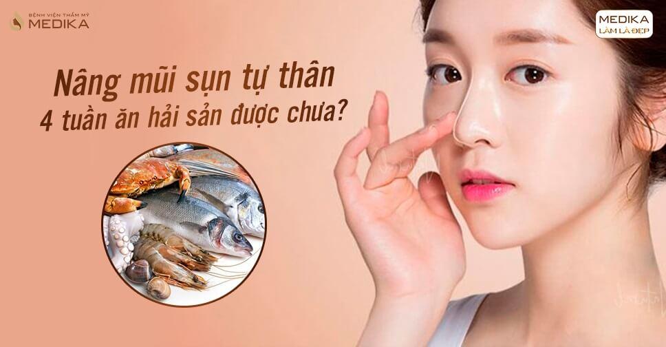 Nâng mũi sụn tự thân 4 tuần ăn hải sản được chưa từ Bệnh viện thẩm mỹ MEDIKA?