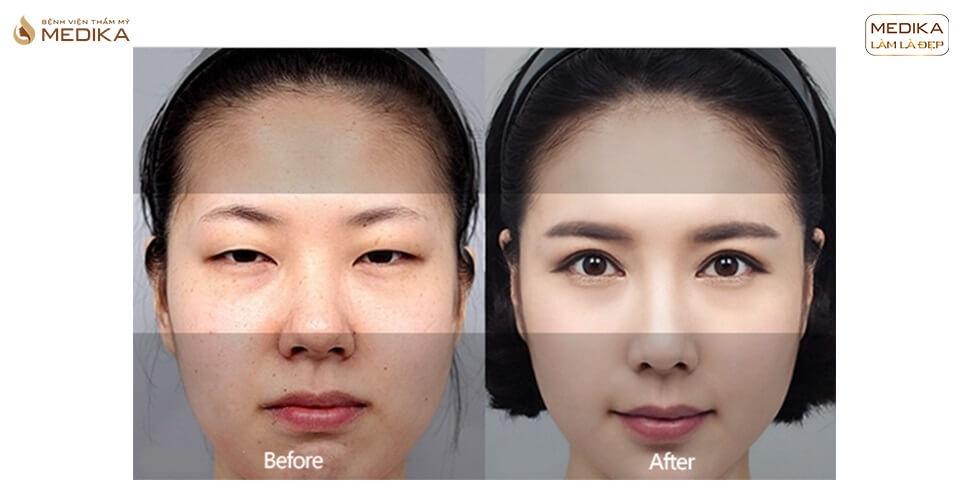 Nếp mí có trông tự nhiên sau cắt mí mắt Hàn Quốc không?
