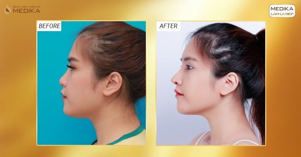 Nguyên nhân đầu mũi cứng sau phẫu thuật nâng mũi bởi Bệnh viện thẩm mỹ MEDIKA