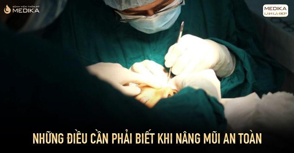 Những điều cần phải biết khi nâng mũi an toàn bởi Bệnh viện thẩm mỹ MEDIKA