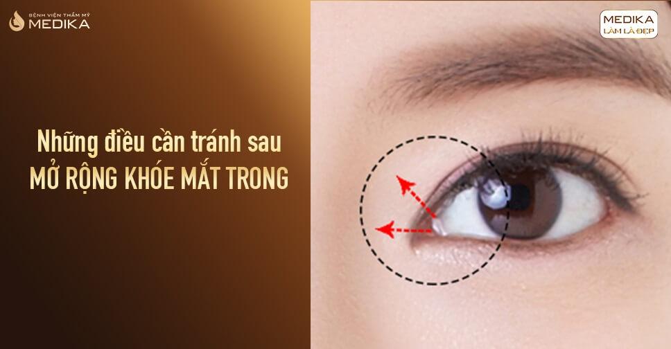 Những điều cần tránh sau mở rộng khóe mắt trong