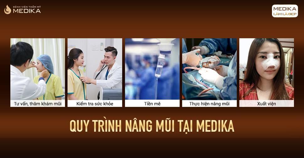 Phẫu thuật nâng mũi tại MEDIKA có gì đặc biệt? - Bởi Bệnh viện thẩm mỹ MEDIKA