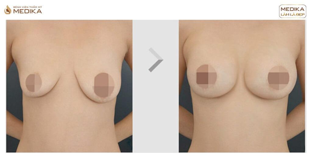 Phẫu thuật ngực hỏng vì không tìm hiểu kỹ trước khi thực hiện bởi Bệnh viện thẩm mỹ MEDIKA