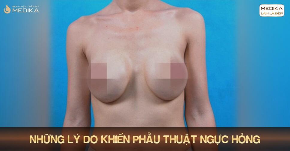 Phẫu thuật ngực hỏng vì nhẹ dạ cả tin bởi Bệnh viện thẩm mỹ MEDIKA