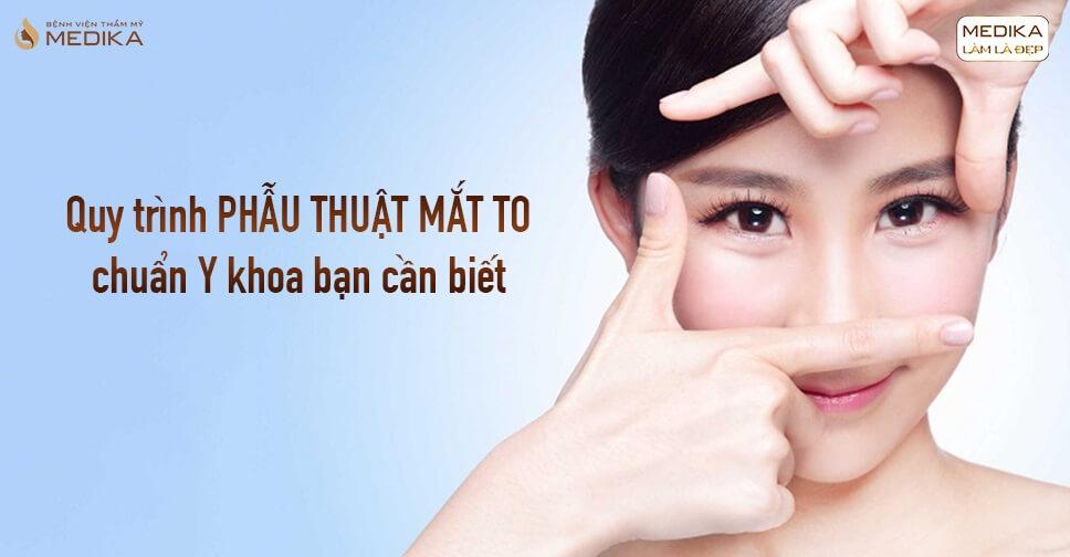 Quy trình phẫu thuật mắt to chuẩn Y khoa bạn cần biết