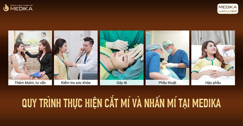 So sánh 2 phương pháp cắt mí mắt và nhấn mí