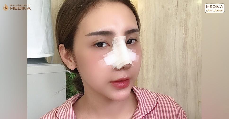 Sử dụng nẹp mũi sau nâng mũi cấu trúc có cần thiết bởi Bệnh viện thẩm mỹ MEDIKA?
