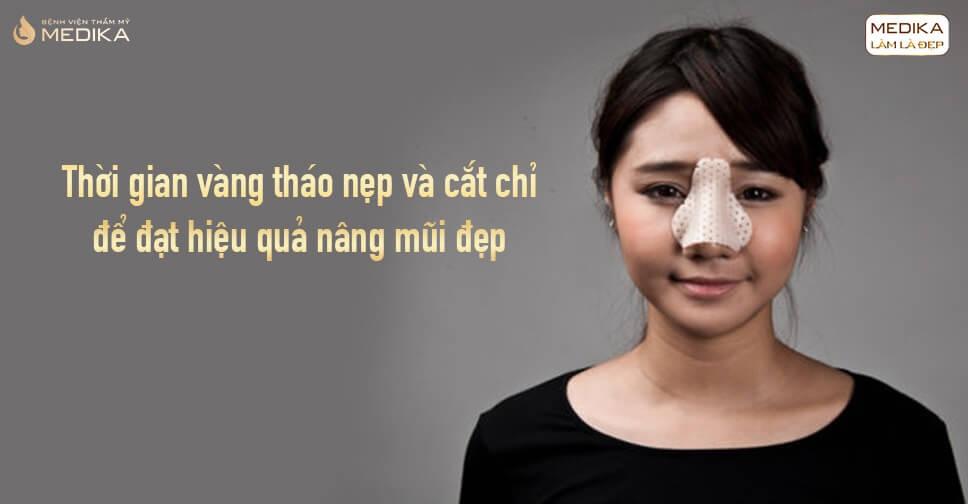 Thời gian vàng tháo nẹp và cắt chỉ để đạt hiệu quả nâng mũi đẹp từ Bệnh viện thẩm mỹ MEDIKA