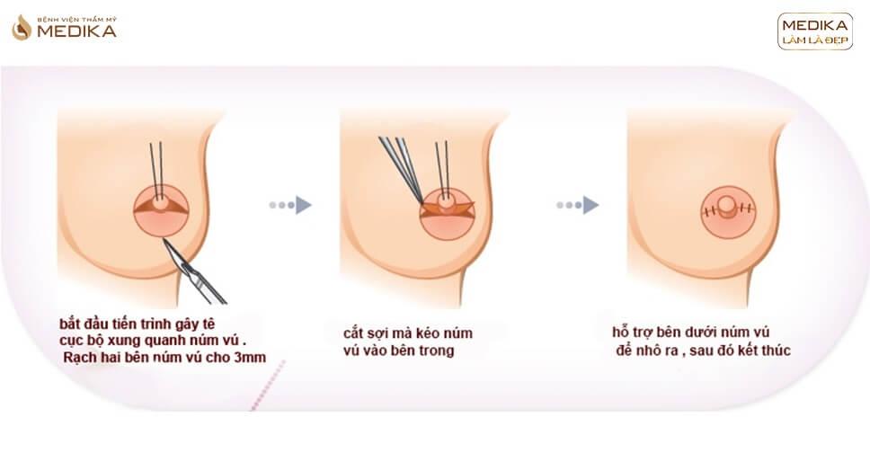 Thu nhỏ đầu vú có đau không? Quy trình diễn ra như thế nào?