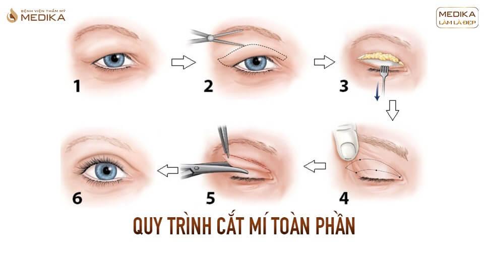 Tìm hiểu về phương pháp cắt mí toàn phần