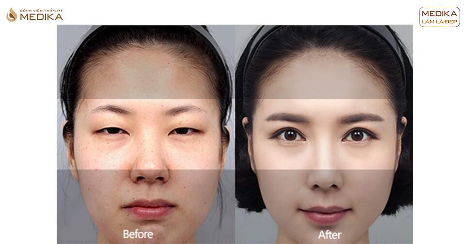 Trước và sau lấy mỡ mí mắt cần lưu ý những gì?