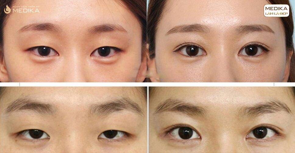 Bấm mí mắt Hàn Quốc - Công nghệ tạo nếp mí nhanh chóng