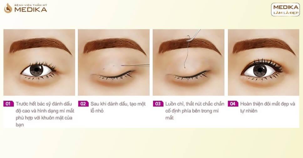 Bấm mí mắt hàn quốc – giải pháp cho người mắt mí lót