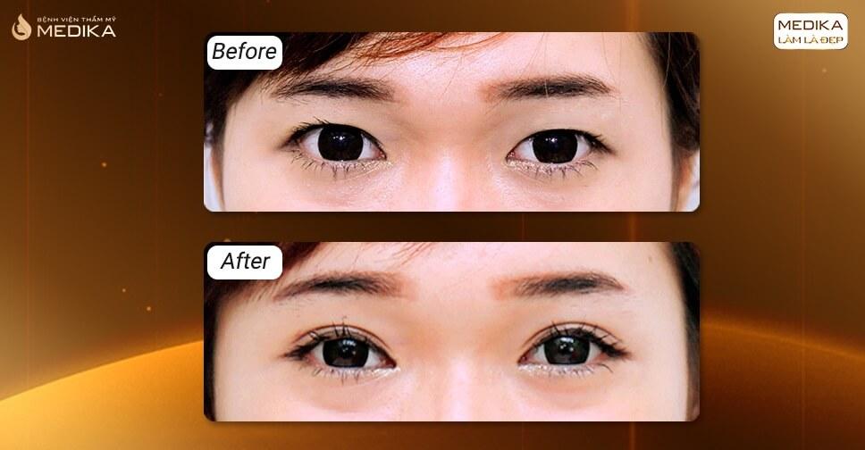 Bấm mí mắt người cơ địa sẹo lồi có nên thực hiện?