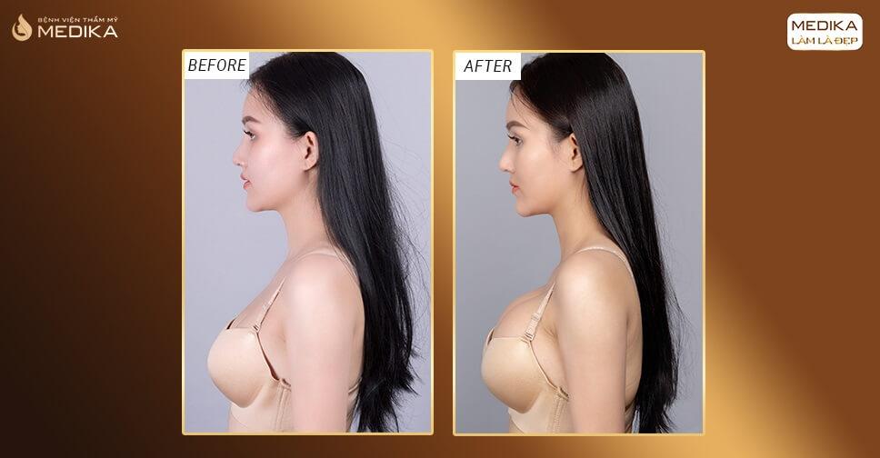 Bí quyết sau khi nâng ngực giúp ngực nhanh chóng mềm mại bởi Bệnh viện thẩm mỹ MEDIKA