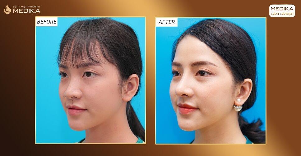 Các loại sụn thường được sử dụng trong nâng mũi bằng sụn tự thân bởi Bệnh viện thẩm mỹ MEDIKA