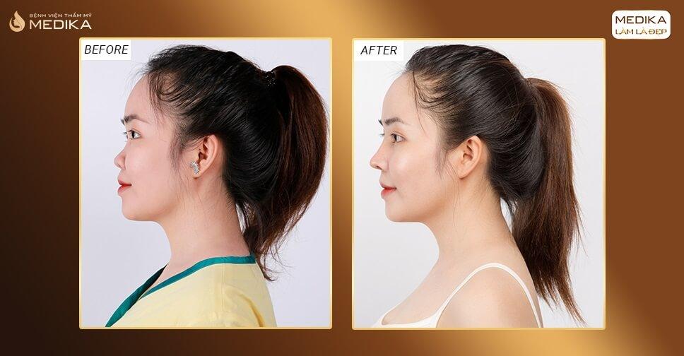 Cách chăm sóc mũi đạt hiệu quả nâng mũi an toàn chuẩn khoa học bởi Bệnh viện thẩm mỹ MEDIKA