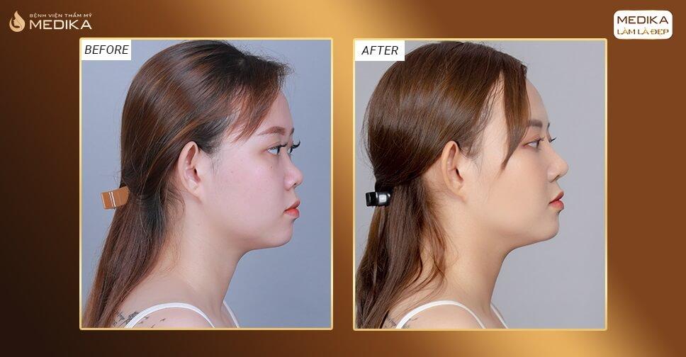 Cách giúp mũi nhanh lành sau nâng mũi bọc sụn bởi Bệnh viện thẩm mỹ MEDIKA