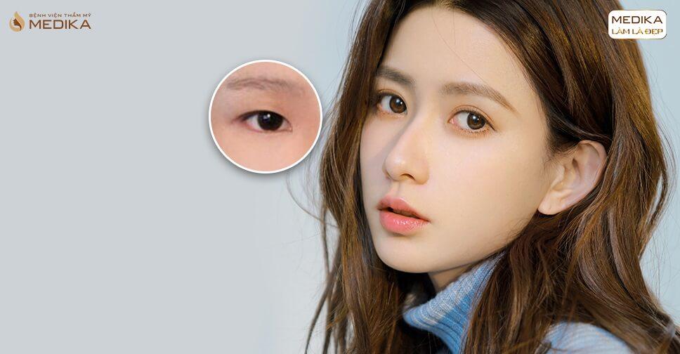 Cắt mắt 2 mí - giải pháp cho người mắt 1 mí