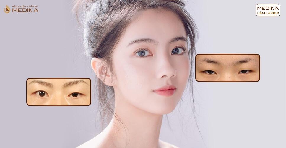 Cắt mắt 2 mí sau 1 tháng đã vào form ổn định chưa?