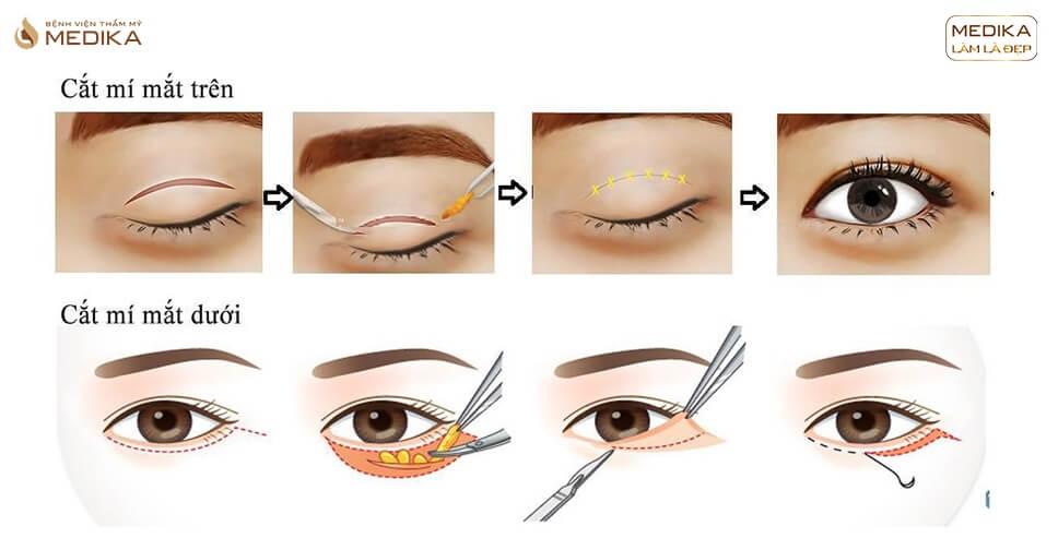 Cắt mắt 2 mí và những biến chứng có thể gặp phải