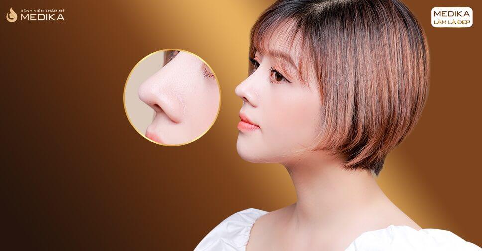 Chuyên đề nâng mũi và chia sẻ bởi chuyên gia Bệnh viện thẩm mỹ MEDIKA
