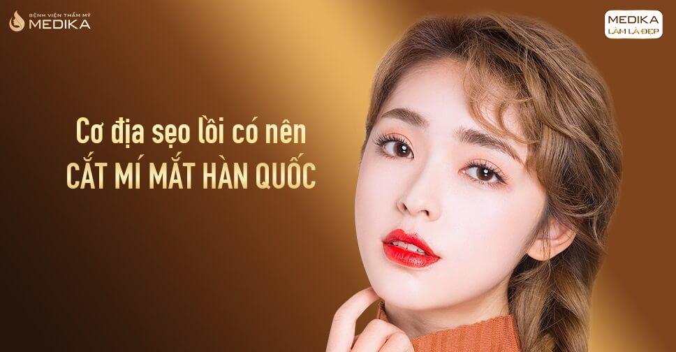 Cơ địa sẹo lồi có nên cắt mí mắt Hàn Quốc