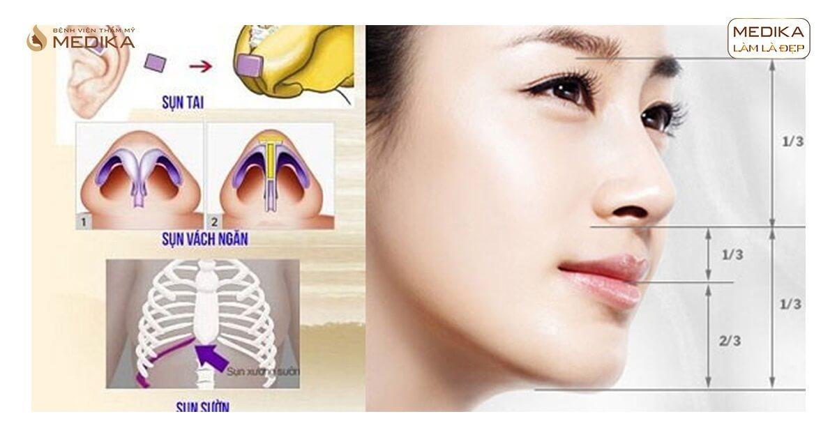Có nên nâng mũi khi mới nhổ răng khôn từ Bệnh viện thẩm mỹ MEDIKA?