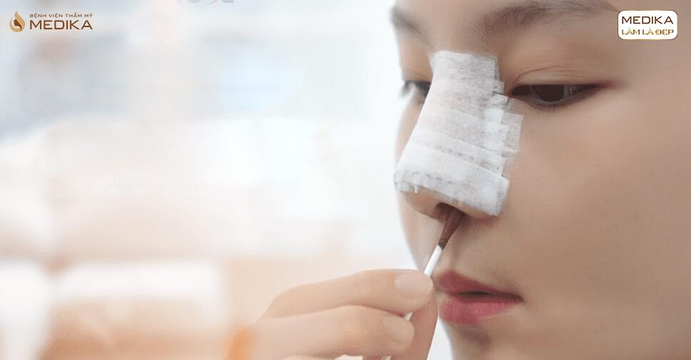 Giải đáp những lo lắng trong quá trình chăm sóc sau nâng mũi bởi Bệnh viện thẩm mỹ MEDIKA