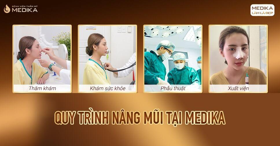 Làm thế nào để nâng mũi an toàn đẹp chuẩn tỉ lệ bởi Bệnh viện thẩm mỹ MEDIKA?