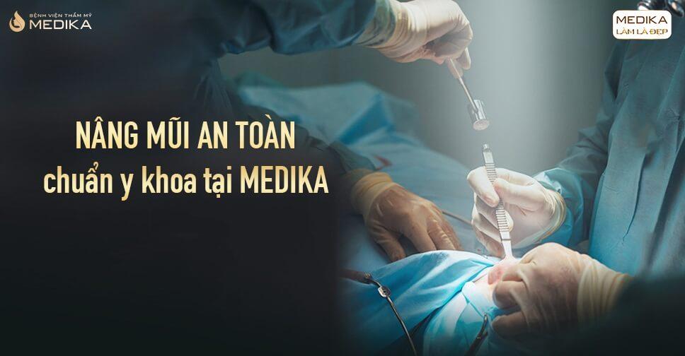 Làm thế nào để nâng mũi an toàn đẹp chuẩn tỉ lệ từ Bệnh viện thẩm mỹ MEDIKA?
