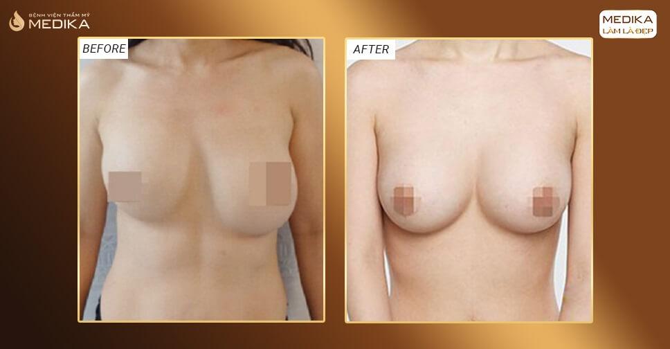 Lỡ phẫu thuật ngực hỏng phục hồi lại chỉ trong 90 phút bởi Bệnh viện thẩm mỹ MEDIKA
