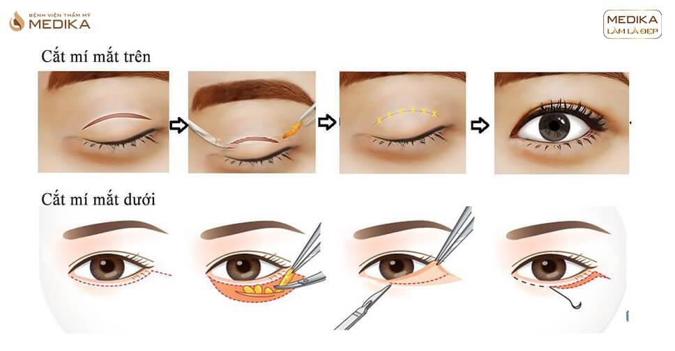 Lời khuyên cắt mắt 2 mí không nên bỏ qua