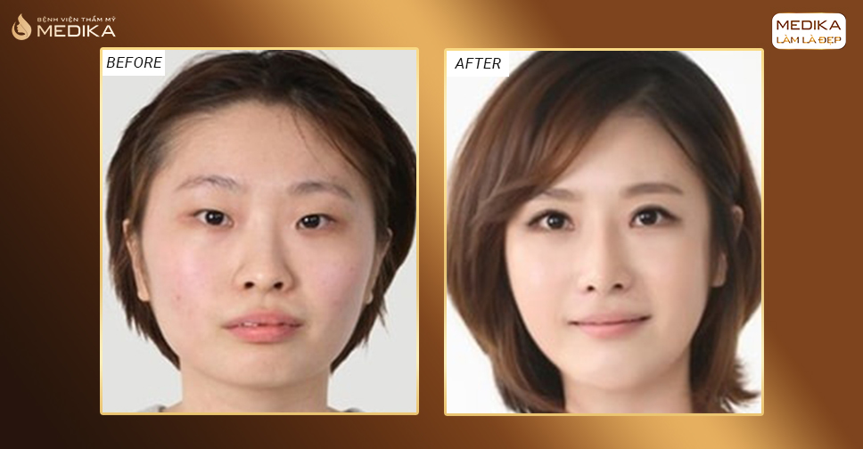 Mở rộng góc mắt – Quy trình phẫu thuật tại Medika