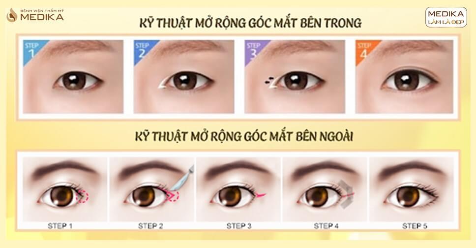 Mở rộng góc mắt trong là gì? Phương pháp này có an toàn không?
