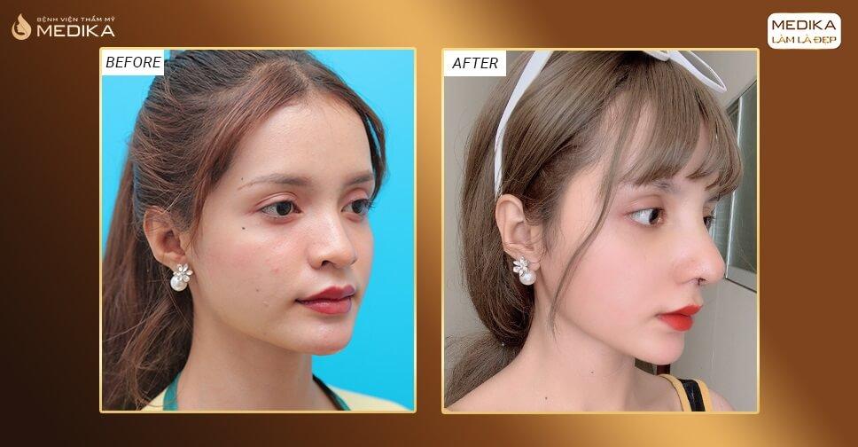 Nâng mũi bằng sụn tự thân có thật sự an toàn như quảng cáo bởi Bệnh viện thẩm mỹ MEDIKA?