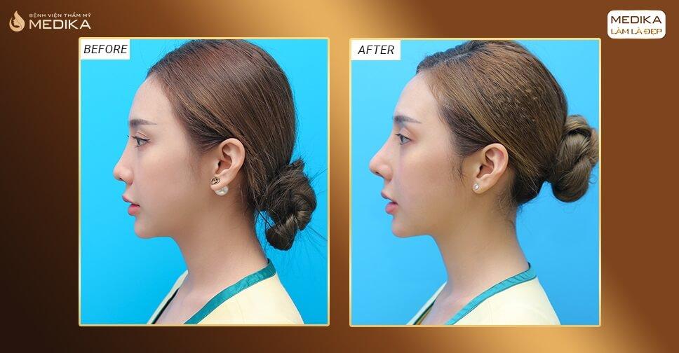 Nâng mũi bằng sụn tự thân hay sụn nhân tạo thì an toàn hơn bởi Bệnh viện thẩm mỹ MEDIKA?