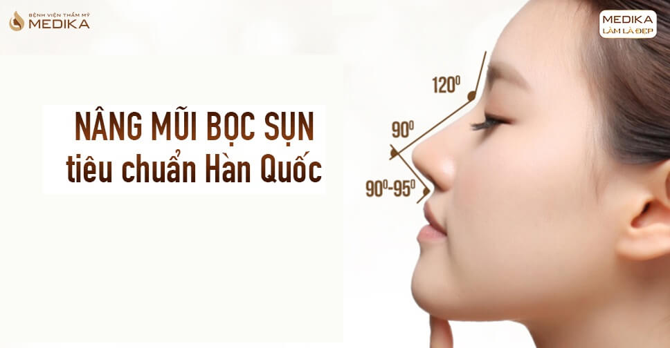 Nâng mũi bọc sụn mang đến hiệu quả thẩm mỹ trong bao lâu từ Bệnh viện thẩm mỹ MEDIKA?