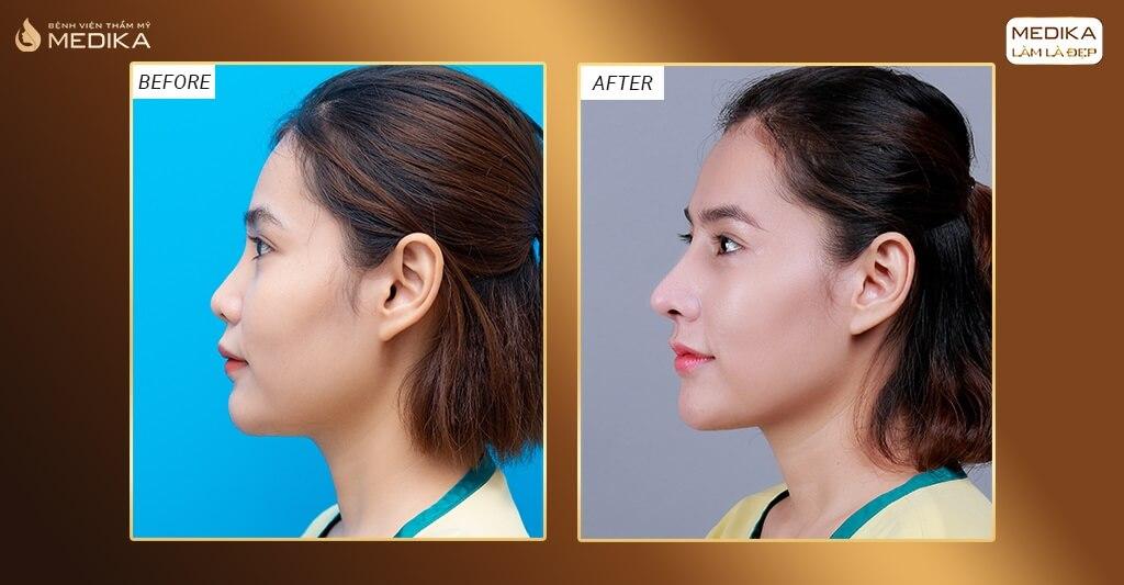 Nâng mũi đẹp thành công 60% nhờ tay nghề bác sĩ bởi Bệnh viện thẩm mỹ MEDIKA