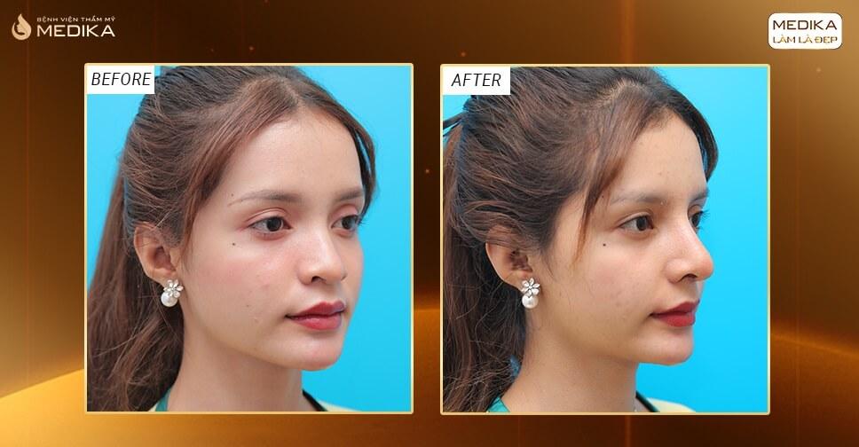 Nâng mũi đẹp thay đổi vận mệnh bởi Bệnh viện thẩm mỹ MEDIKA