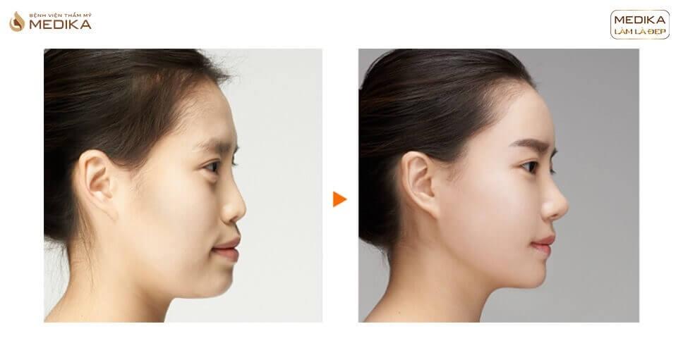 Nâng mũi sụn nhân tạo để được bao lâu bởi Bệnh viện thẩm mỹ MEDIKA?