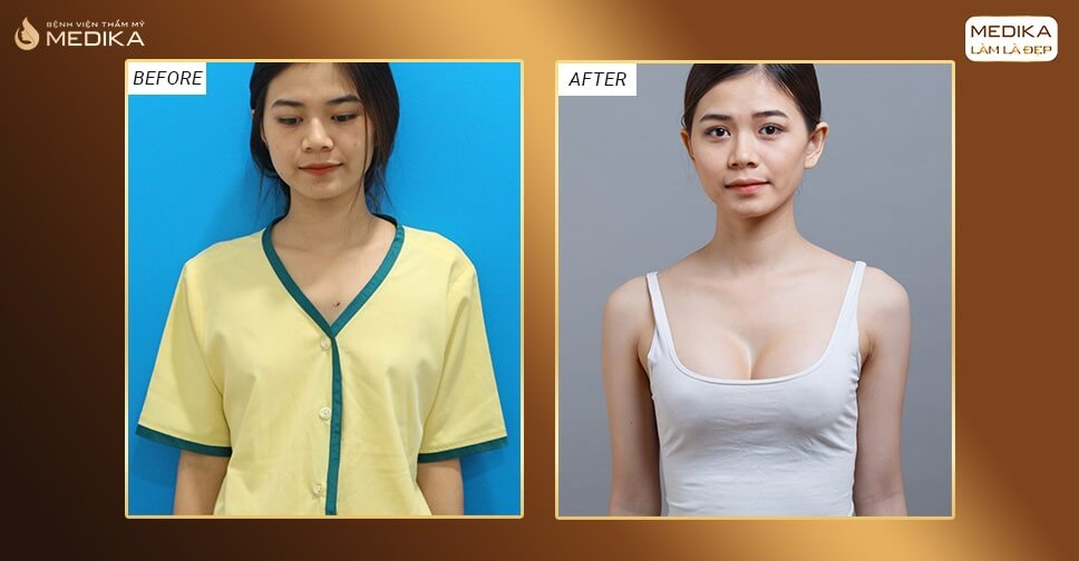 Nâng ngực  được nhiều khách hàng quan tâm đặc biệt bởi Bệnh viện thẩm mỹ MEDIKA