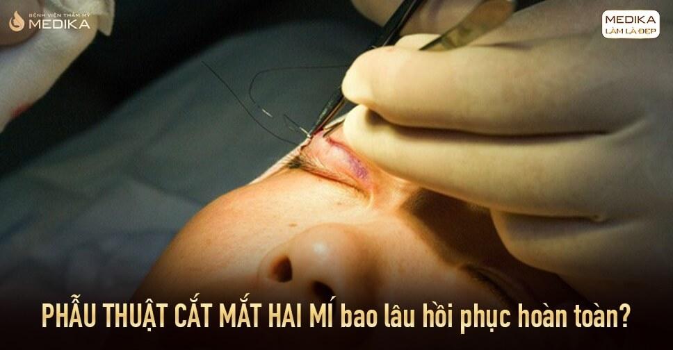 Phẫu thuật cắt mắt hai mí bao lâu hồi phục hoàn toàn