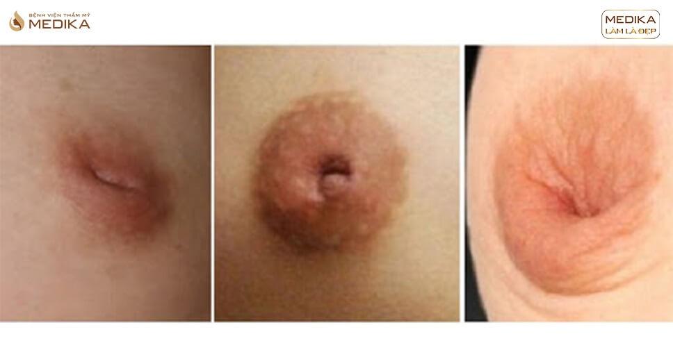 Phẫu thuật kéo núm vú tụt- những ưu điểm vượt trội