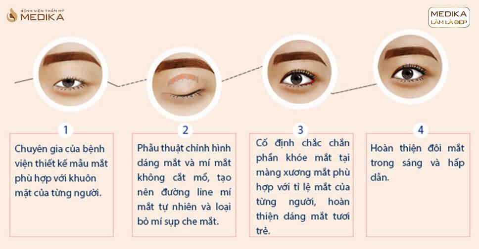 Phẫu thuật mắt to 5 bước phẫu thuật chuẩn an toàn