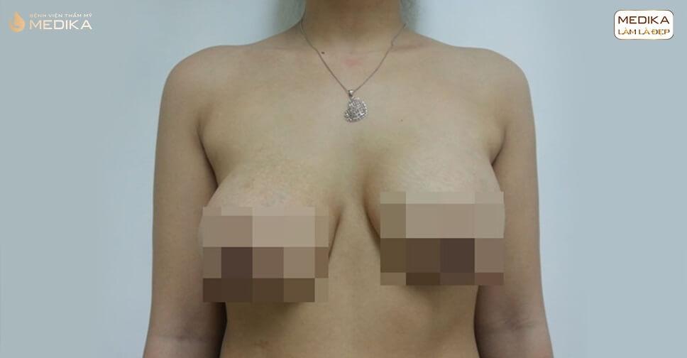 Phẫu thuật ngực hỏng do tìm hiểu không kỹ bởi Bệnh viện thẩm mỹ MEDIKA