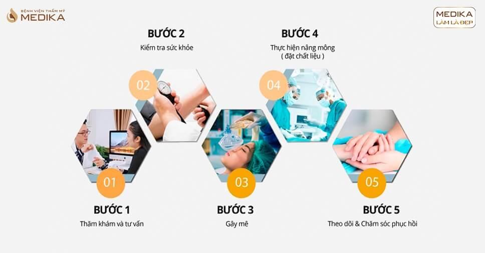 Tìm hiểu giá nâng vòng 3 tại Bệnh viện thẩm mỹ Medika