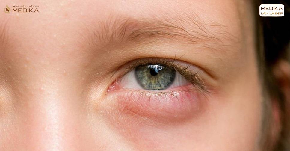Tìm hiểu về tình trạng co rút mi sau lấy mỡ mí mắt